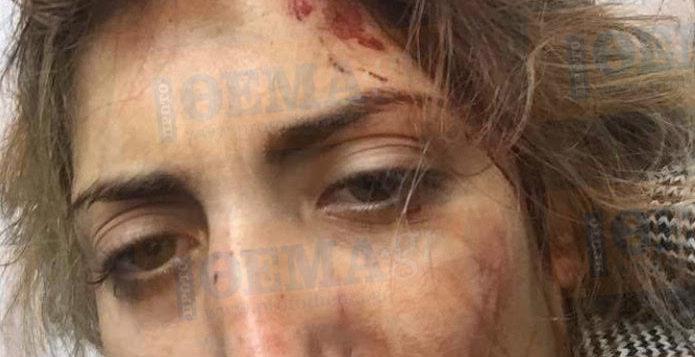 Σοκ με τη Βασιλική Πετρίδου –Ξυλοκοπήθηκε η ηθοποιός από το «Παρθένα Ζωή»